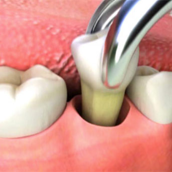 Dra ut en tand